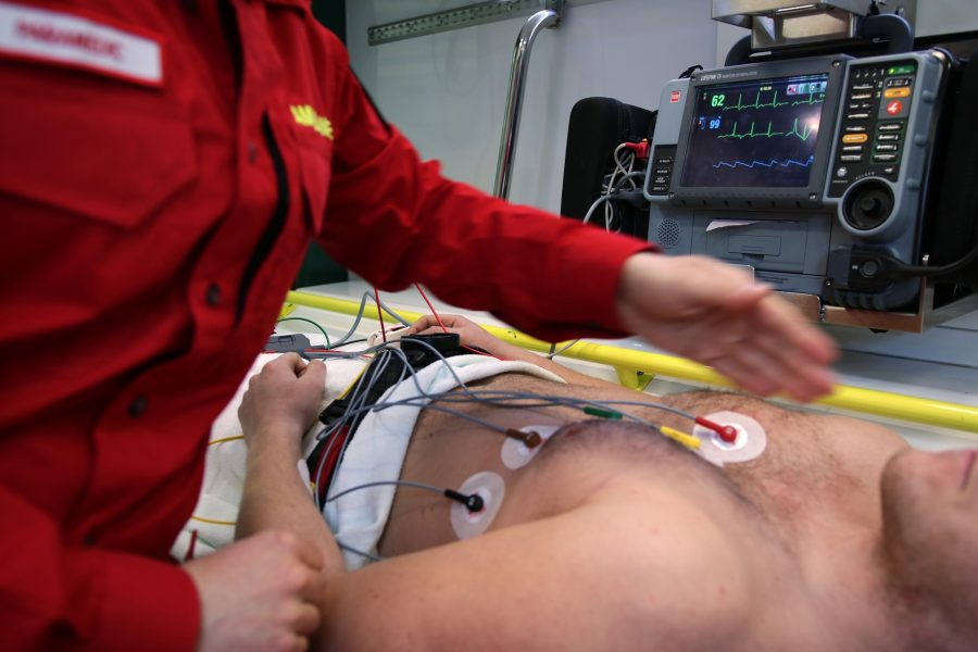 A hairy man with electrodes on his chest.