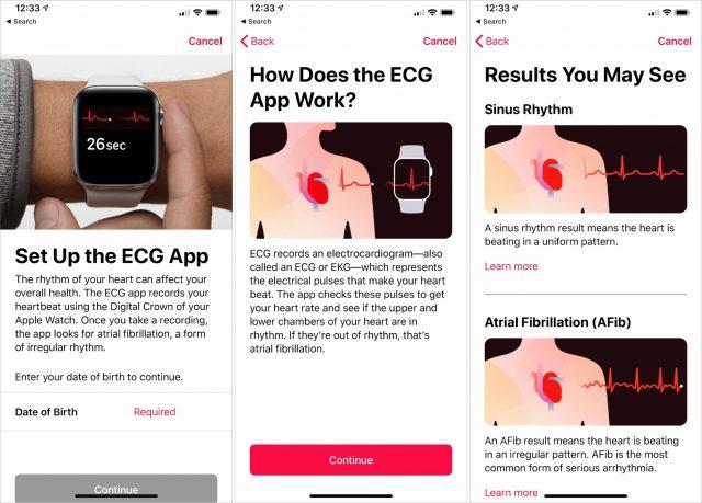 Apple's ECG walkthrough.