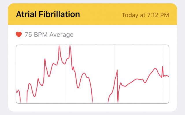 How AFib looks in the ECG app.